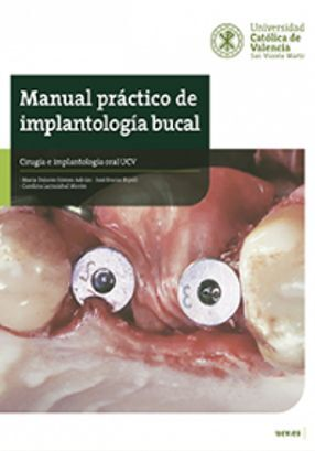 MANUAL PRÁCTICO DE IMPLANTOLOGÍA BUCAL