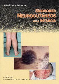 SINDROMES NEUROCUTANEOS EN LA INFANCIA