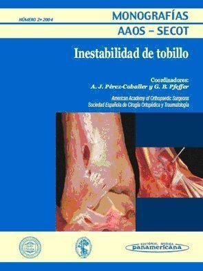MONOGRAFÍA Nº 2/2004: INESTABILIDAD DE TOBILLO