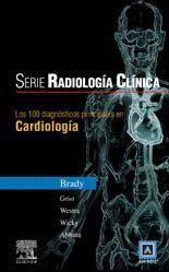 LOS 100 DIAGNÓSTICOS PRINCIPALES EN CARDIOLÓGIA
