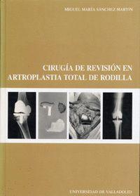 CIRUGÍA DE REVISIÓN EN ARTROPLASTIA TOTAL DE RODILLA