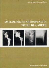 OSTEOLISIS EN ARTROPLASTIA TOTAL DE CADERA
