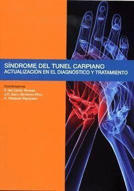 SNDROME DEL TÚNEL CARPIANO ACTUALIZACIÓN EN EL DIAGNÓSTICO Y TRATAMIENTO