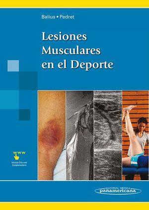 BALIUS:LESIONES MUSCULARES EN EL DEP.+E