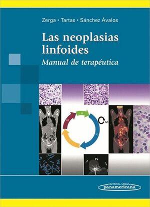 PACK. ZERGA: NEOPLASIAS LINFOIDES